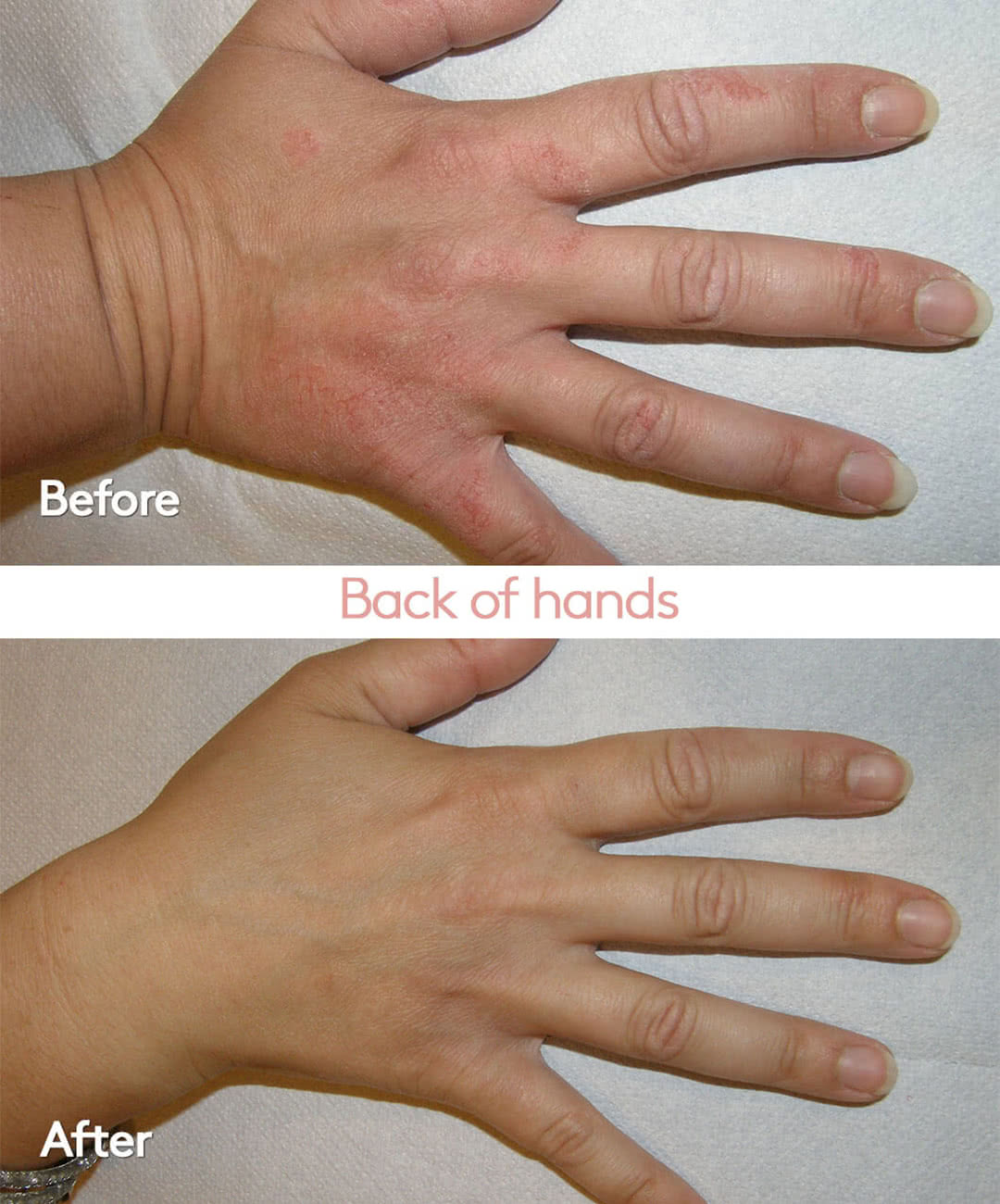 Helight Before and After hand treatments