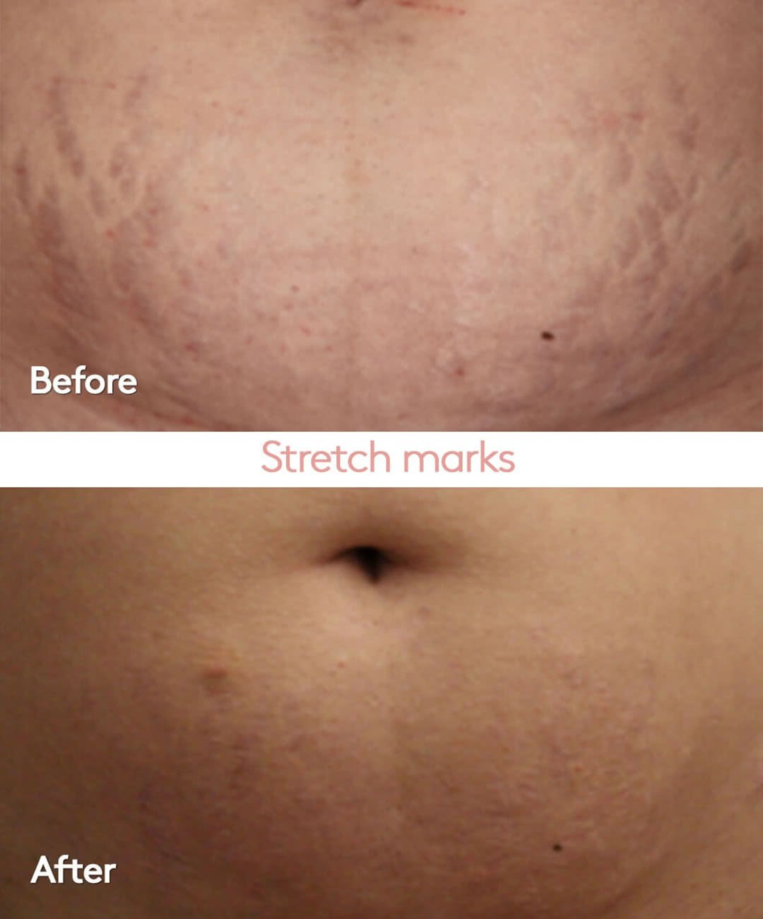 Helight Before and After Stretch Marks